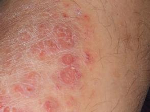 牛皮癣容易造成常见的皮肤癌吗
