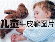 儿童牛皮癣可以治好吗